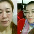 护肤产品3个月后