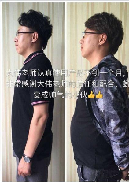 减肥案例分享