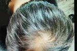 调理白发、脱发