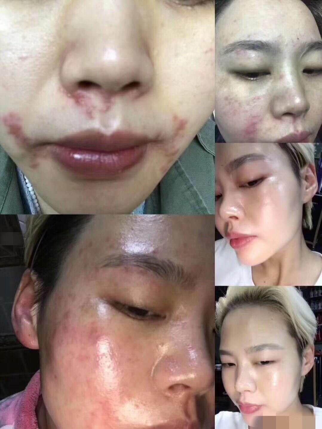 皮肤改善对比