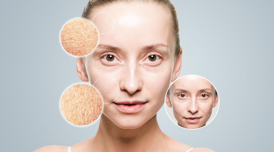 美商婕斯白藜芦醇可以调理皮肤过敏吗?